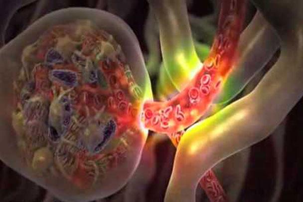 Diabetic Nephropathy - Suffolk Nephrology Associates